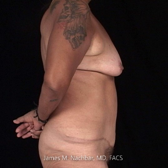 Side View 1 Year After Tummy Tuck