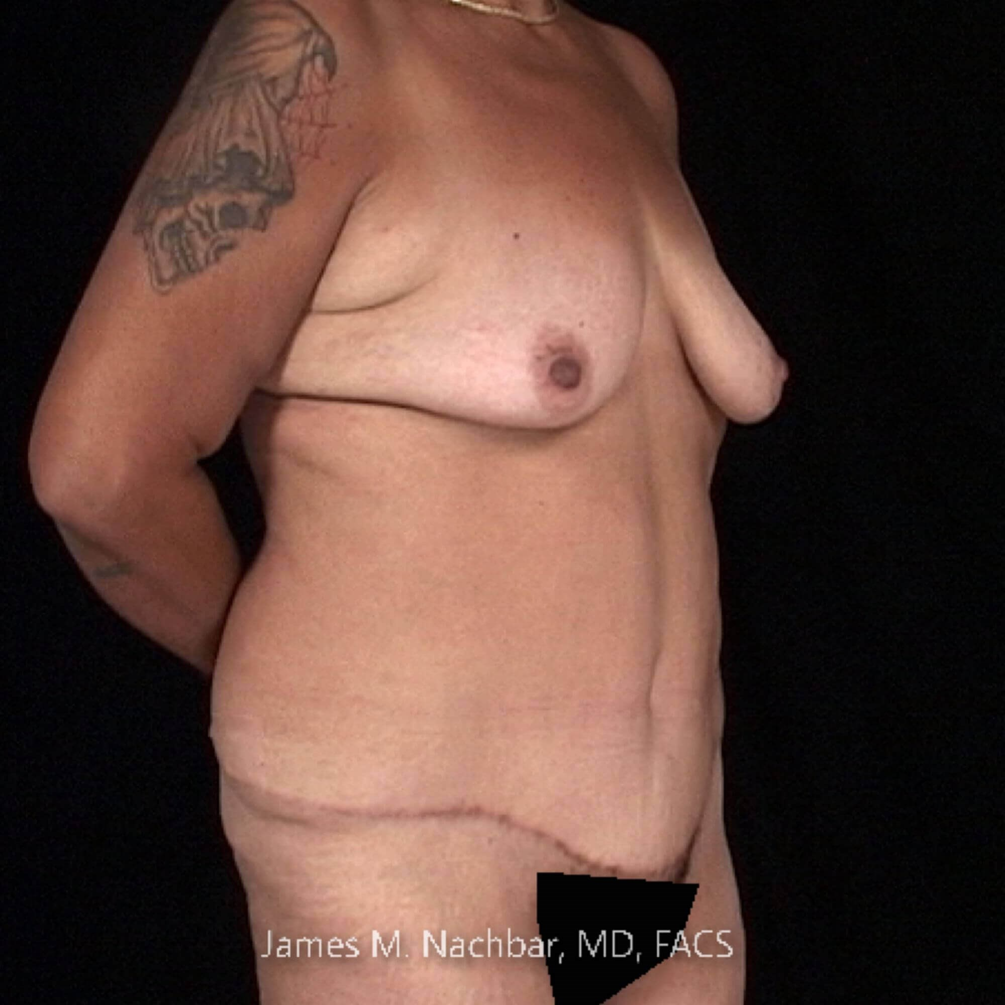 Oblique View 1 Year After Tummy Tuck