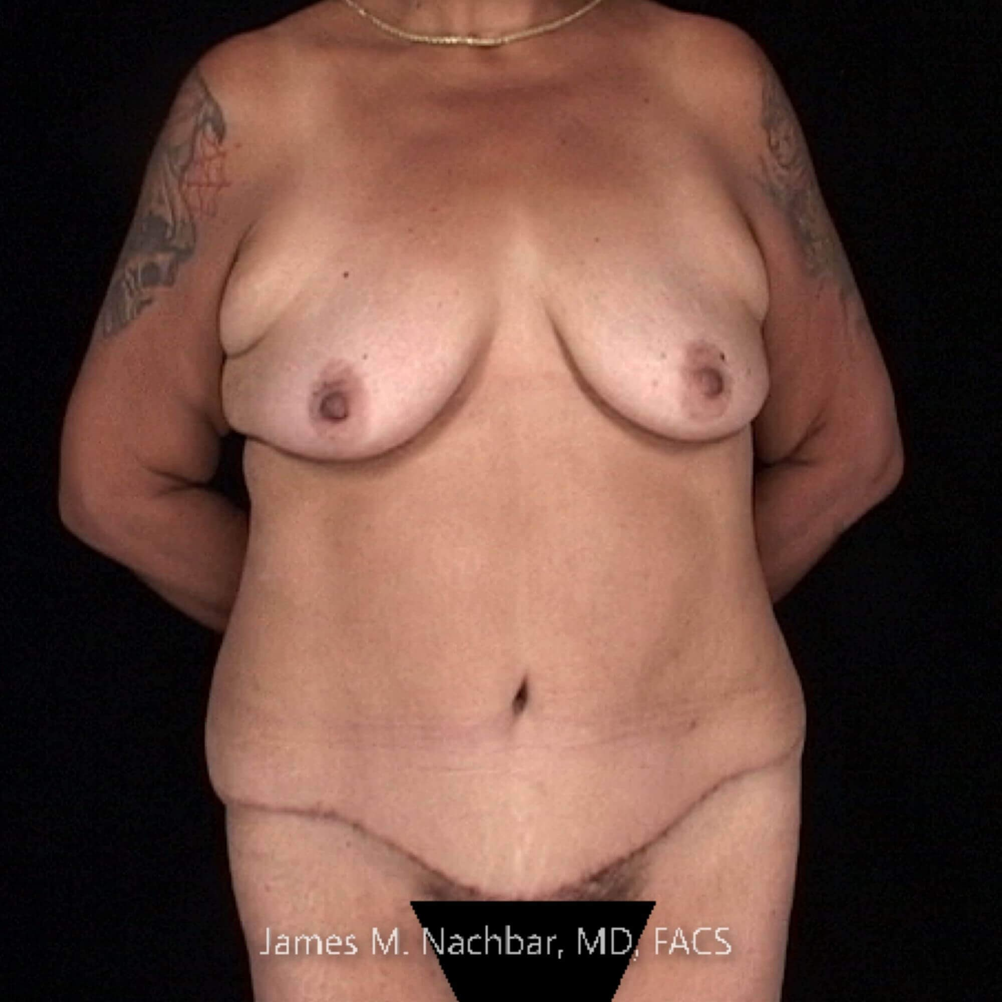 Front View 1 Year After Tummy Tuck