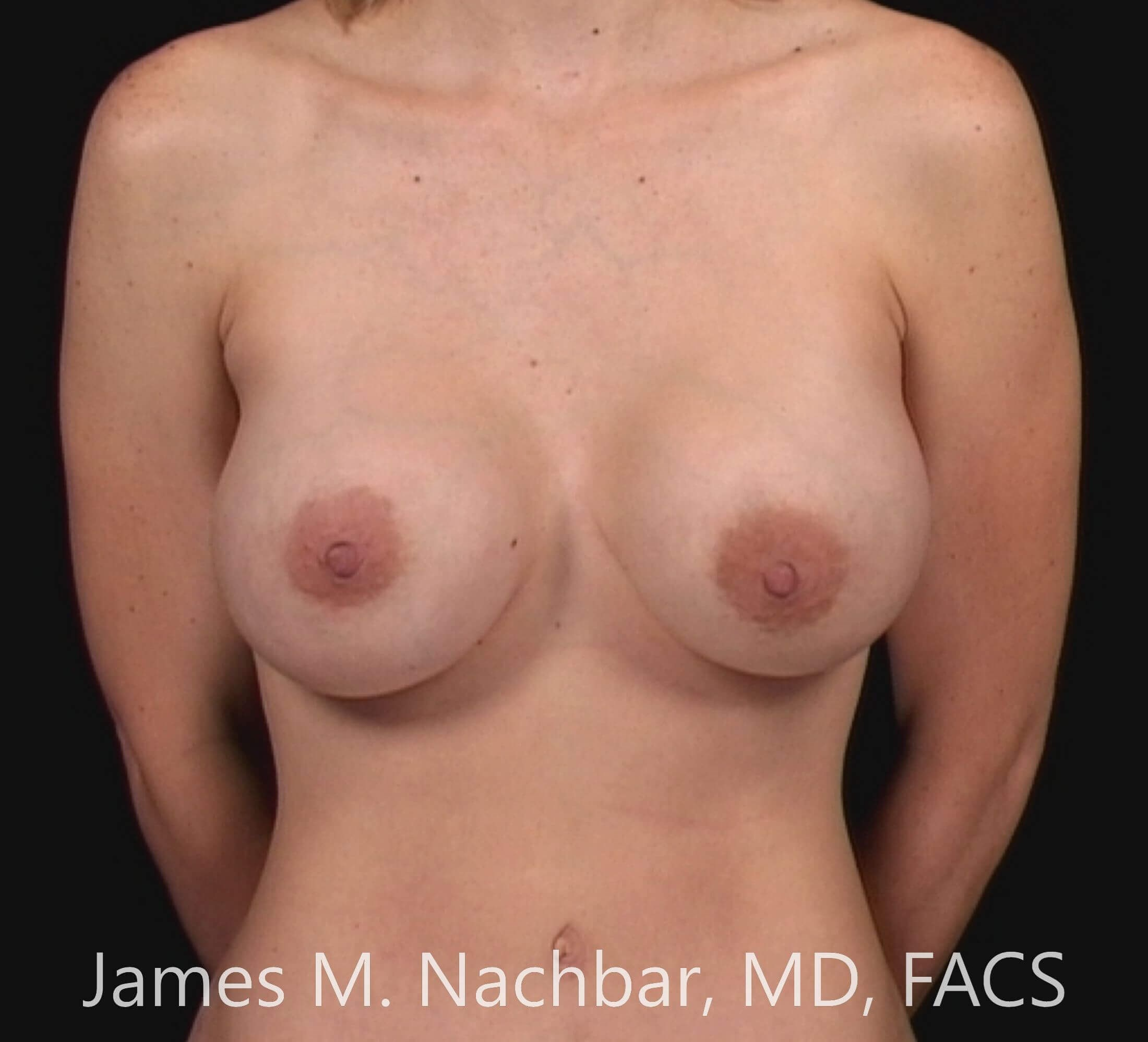 Front View Augmentation 6 Months After
