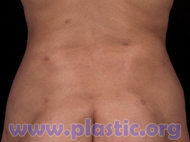 Warning about Laser Liposuction - James M  Nachbar, MD, FACS
